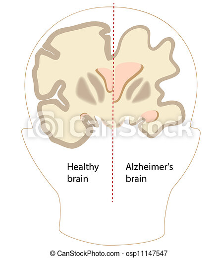Cerebro de enfermedad de Alzheimer, eps8 - csp11147547