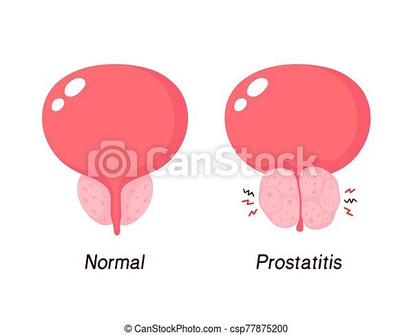 benigno, prostatic, normal, hyperplasia, próstata - csp77875200
