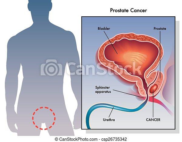 Cáncer de próstata - csp26735342