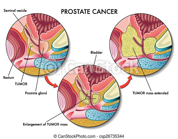Cáncer de próstata - csp26735344