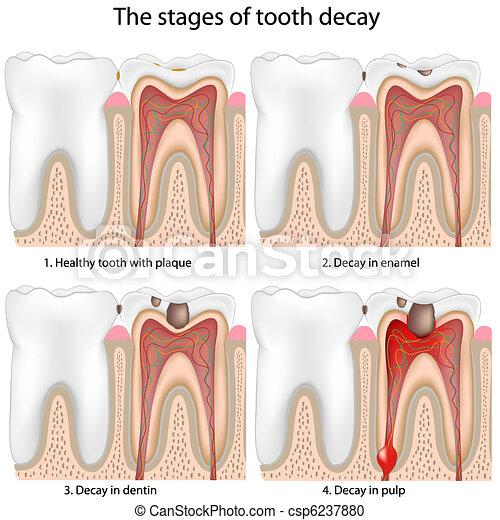 Descomposición de dientes - csp6237880