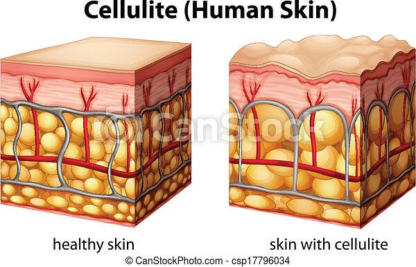 Celulitis - csp17796034