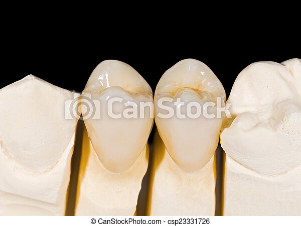 Coronas de cerámica - csp23331726