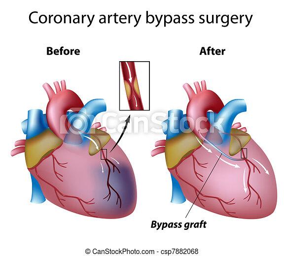 Cirugía de bypass cardíaco, eps8 - csp7882068