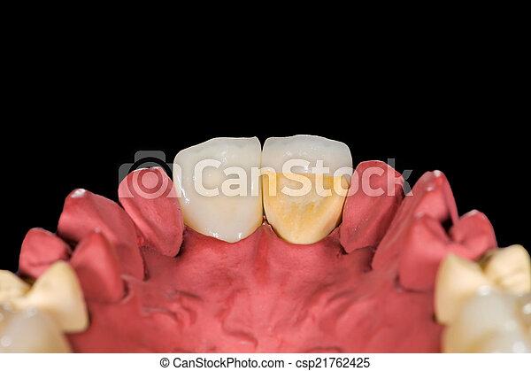 Coronas de cerámica dental - csp21762425