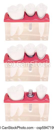 Modelo dental de implante - csp5947199