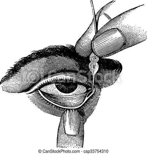 Dilación de conducto lacrimal usando sondas, grabado antiguo - csp33754310