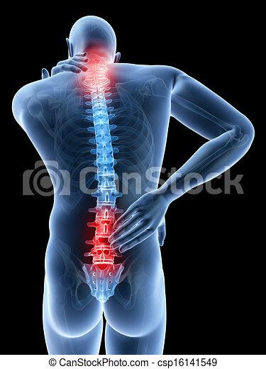 Doloroso espalda y cuello - csp16141549