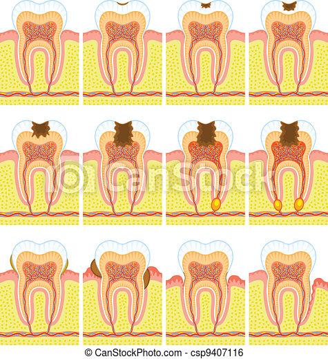 Estructura interna de dientes - csp9407116