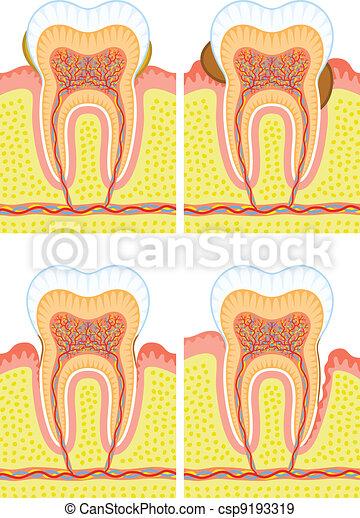 Estructura interna de dientes - csp9193319