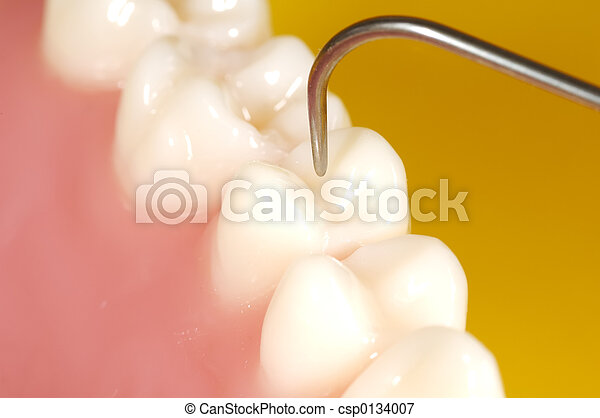 Examen dental - csp0134007