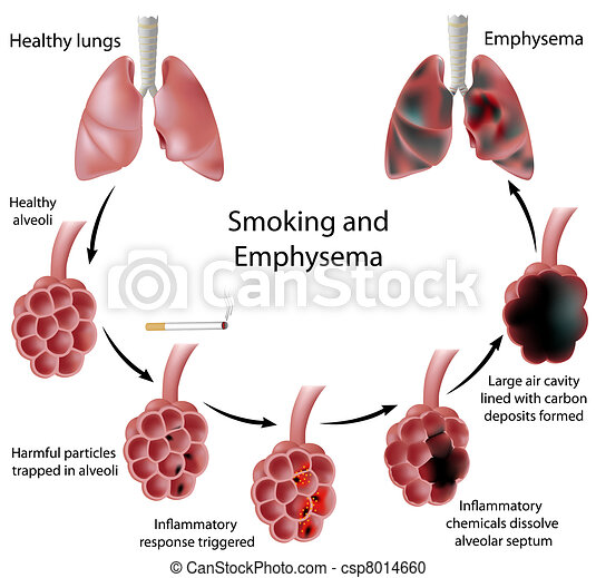 Fumar y enfisema, eps8 - csp8014660