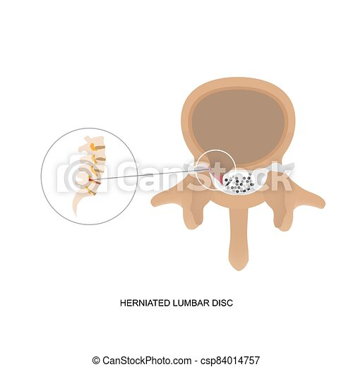 herniated, demostración, disc., humano, ilustración, lumbar - csp84014757