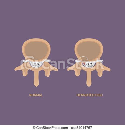 herniated, demostración, humano, disco, ilustración, lumbar - csp84014767