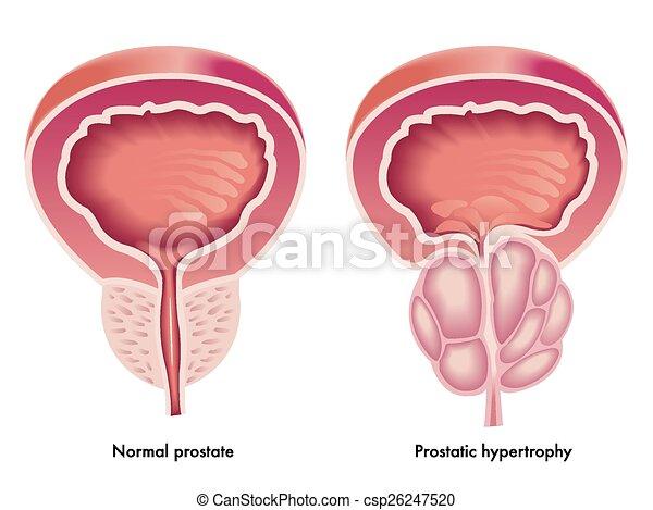 Hipertrofia prostática - csp26247520