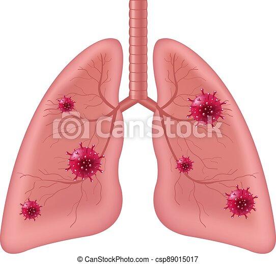 humano, aislado, coronavirus, órgano, plano de fondo, interno, pulmones, blanco - csp89015017