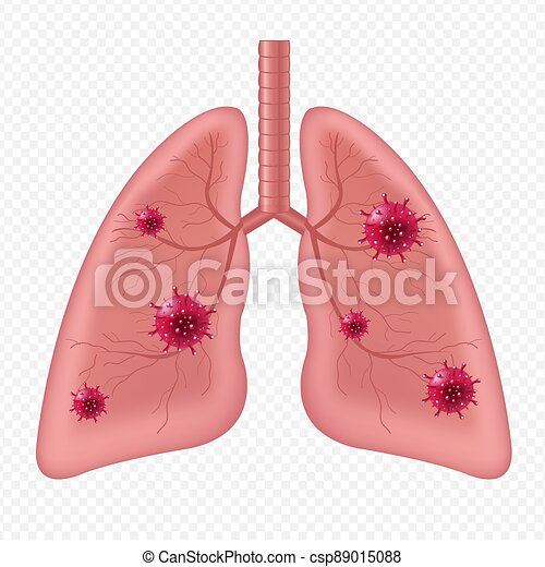 humano, aislado, coronavirus, órgano, plano de fondo, interno, pulmones, blanco - csp89015088