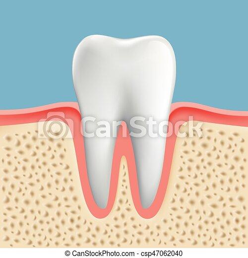 Imágenes de un diente humano con caries - csp47062040