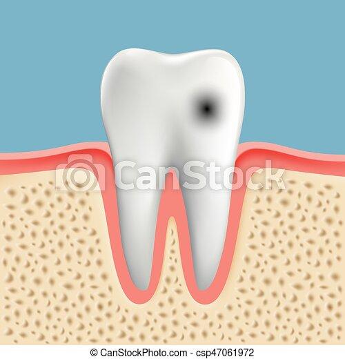 Imágenes de un diente humano con caries - csp47061972