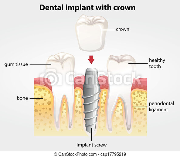 Implant dental con corona - csp17795219