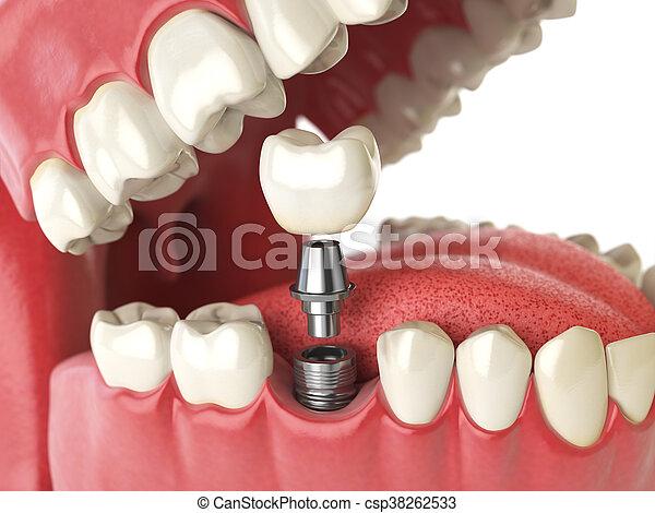 Implant humano de dientes. Concepto dental. Dientes humanos o dentaduras. - csp38262533