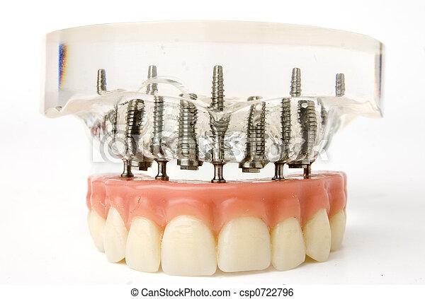 Modelo de implante de dientes - csp0722796