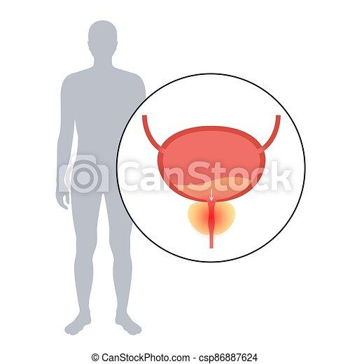 inflamación, prostatitis, problema - csp86887624