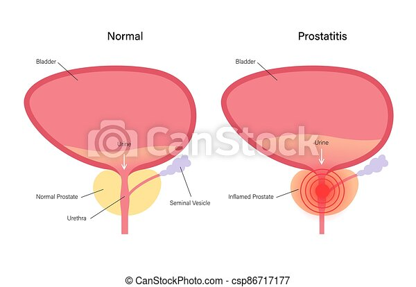 inflamación, prostatitis, problema - csp86717177