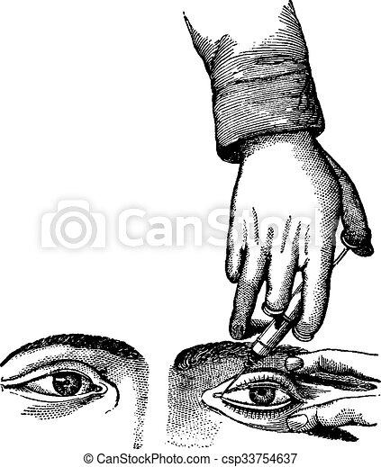 Inyectando el canal nasolacrimal, grabado antiguo - csp33754637