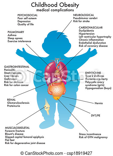 Obesidad infantil - csp18919427
