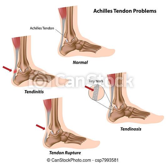 Problemas tendones de Aquiles, - csp7993581