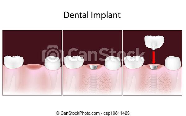 Procedimiento de implante dental, Eps10 - csp10811423