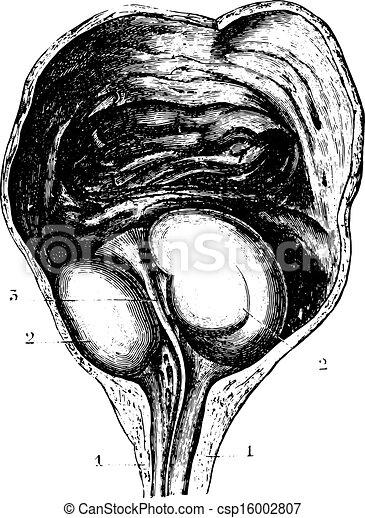Prostata ampliada o hiperplasia prostatica Benigna (BPH), determi - csp16002807