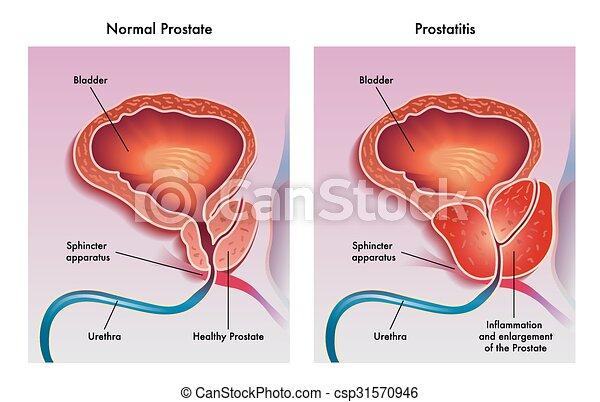Prostatitis - csp31570946