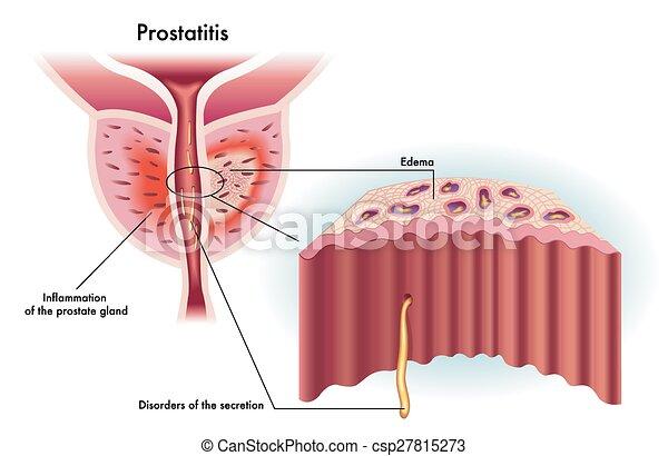 Prostatitis - csp27815273