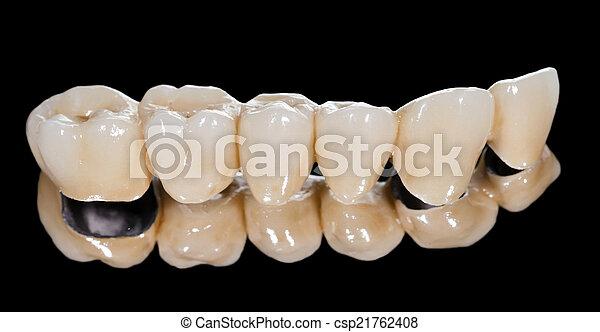 Puente de cerámica dental - csp21762408