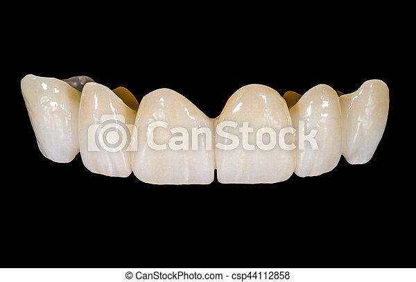 Puente de cerámica dental - csp44112858