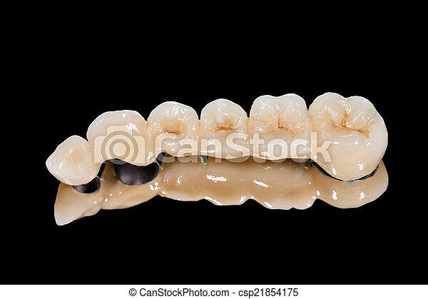 Puente de cerámica dental - csp21854175