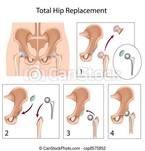 Reemplazo total de cadera, eps10 - csp8575852