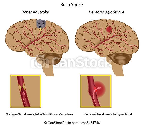 Una embolia cerebral. - csp6484746